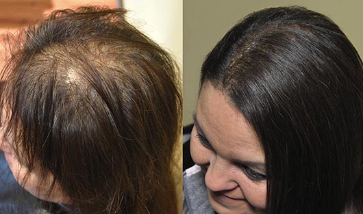 Di biase hair extensions usa before and afters di biase hair extensions by vikki parman of farmington mi pmusecretfo Gallery
